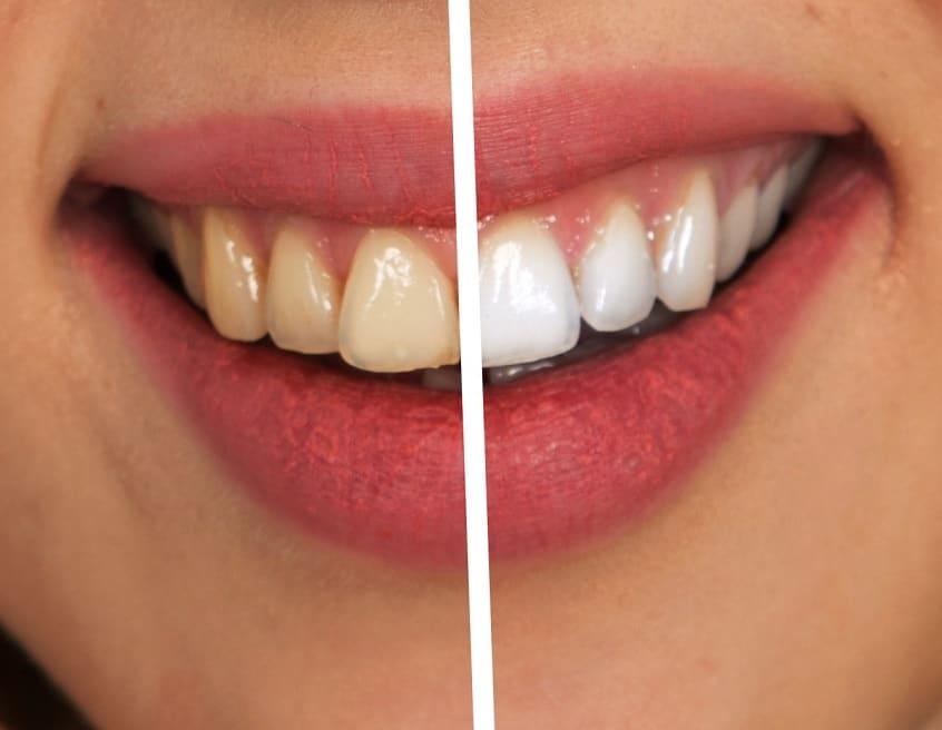 sbiancamento dentale a Sassari e Olbia: Sorriso 32